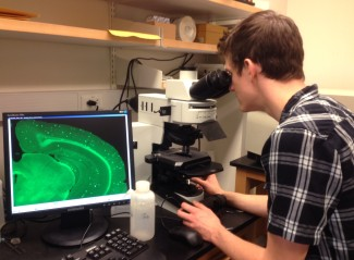 Researcher from Henry L. Paulson's llab looking at a computer image of plaques on the brain of a mouse.